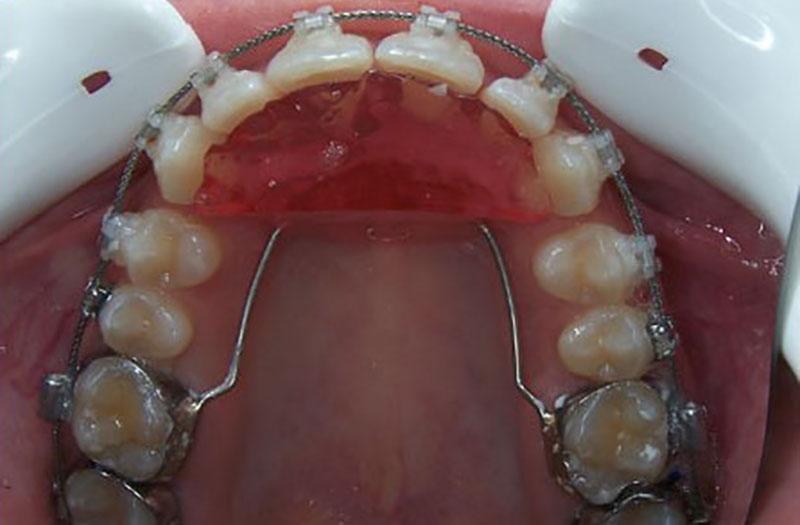 Les appareils d'orthodontie