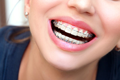Orthodontie précoce